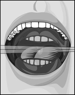 前位舌低位舌